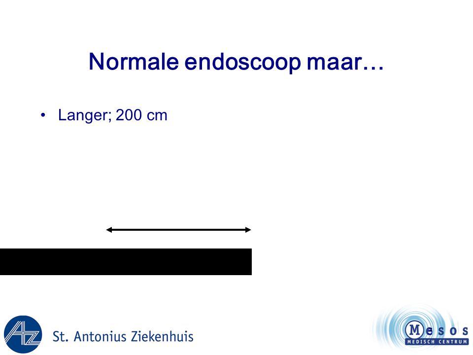 Normale endoscoop maar…