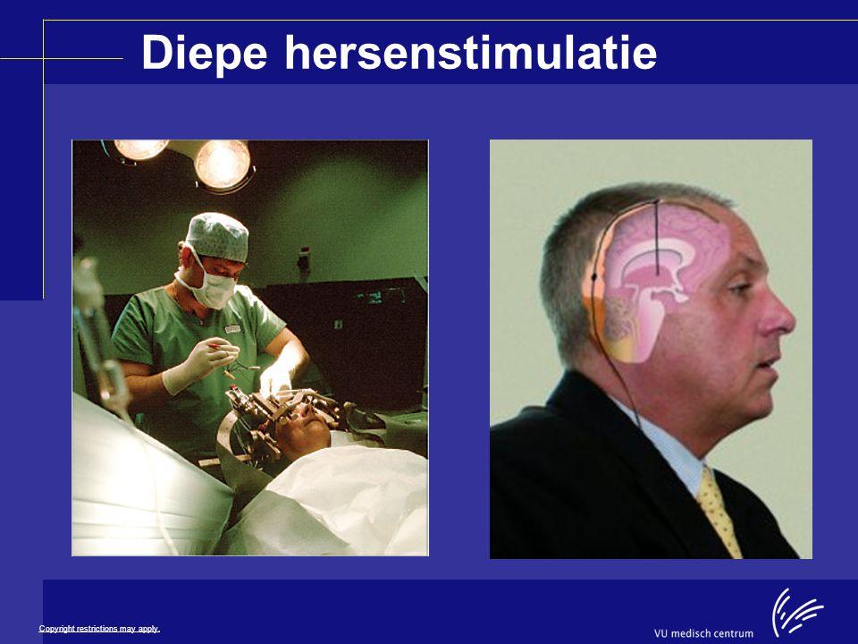 Diepe hersenstimulatie