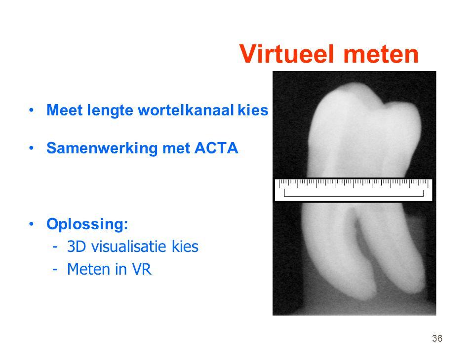 Virtueel meten Meet lengte wortelkanaal kies Samenwerking met ACTA