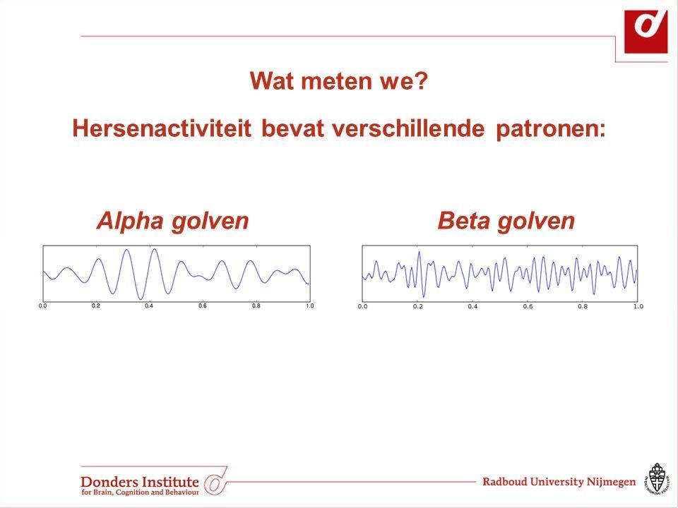 Hersenactiviteit bevat verschillende patronen: