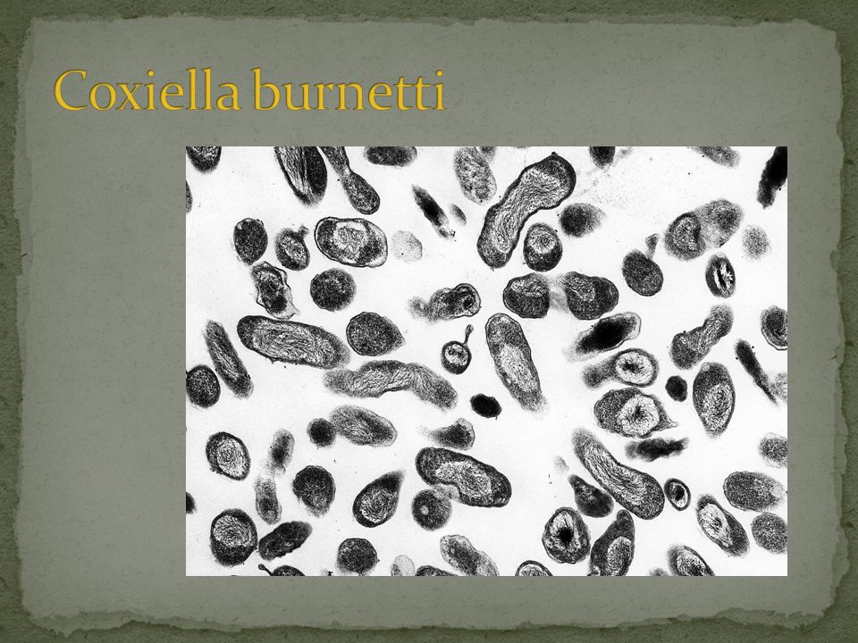 Coxiella burnetti 1e isolaat door H.R. Cox, VS in 1938