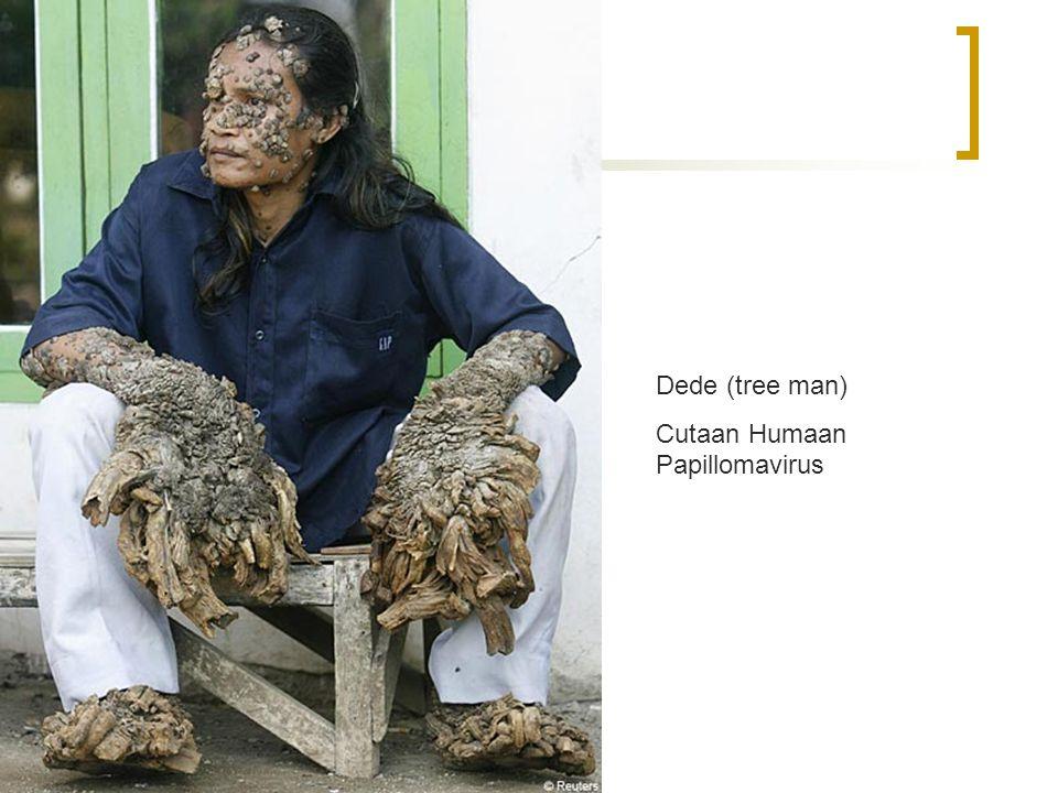 Cervixcarcinoom Verschillende types HPV Dede (tree man)