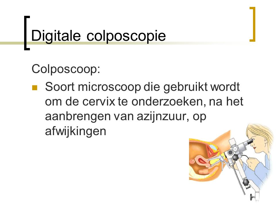 Digitale colposcopie Colposcoop: