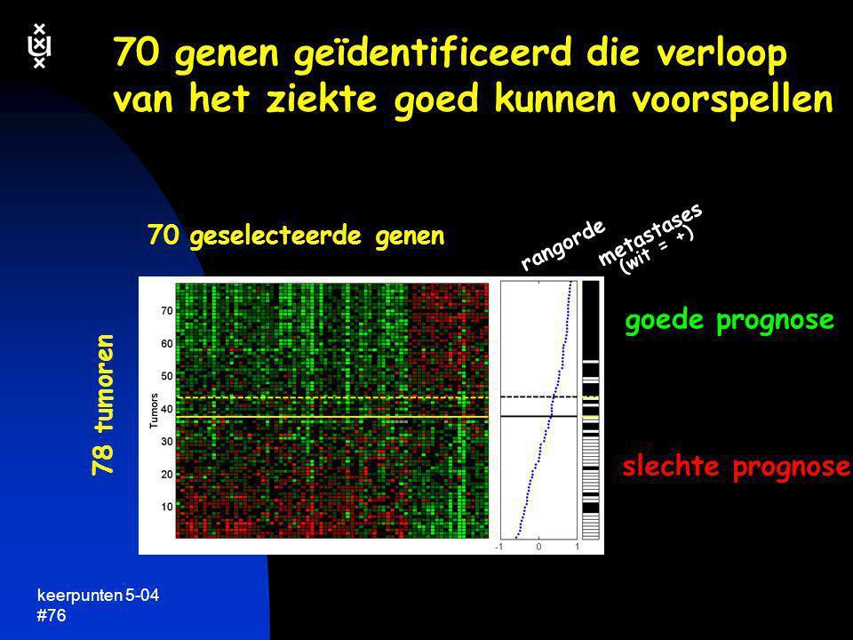 70 genen geïdentificeerd die verloop van het ziekte goed kunnen voorspellen