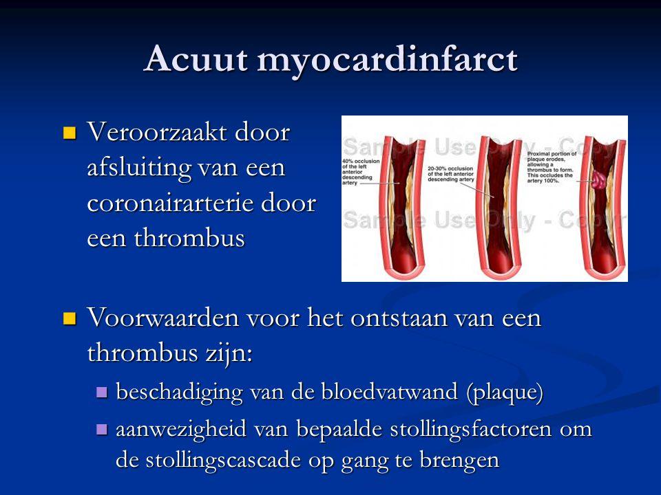 Acuut myocardinfarct Veroorzaakt door afsluiting van een coronairarterie door een thrombus. Voorwaarden voor het ontstaan van een thrombus zijn:
