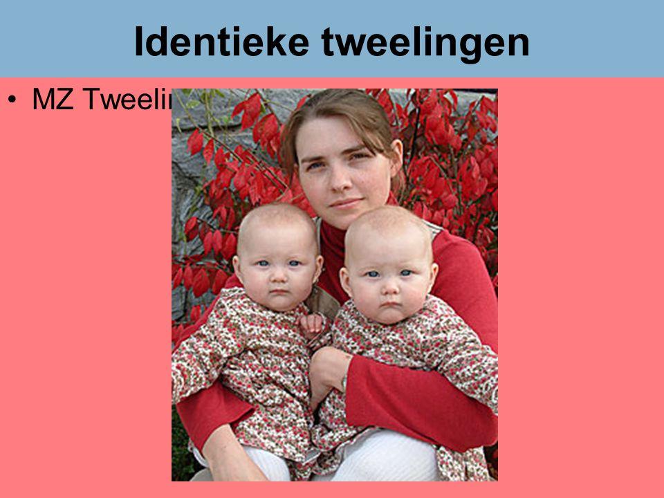 Identieke tweelingen MZ Tweelingen Dr Peet H Botha