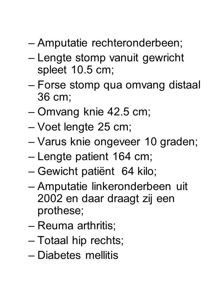 Amputatie rechteronderbeen;