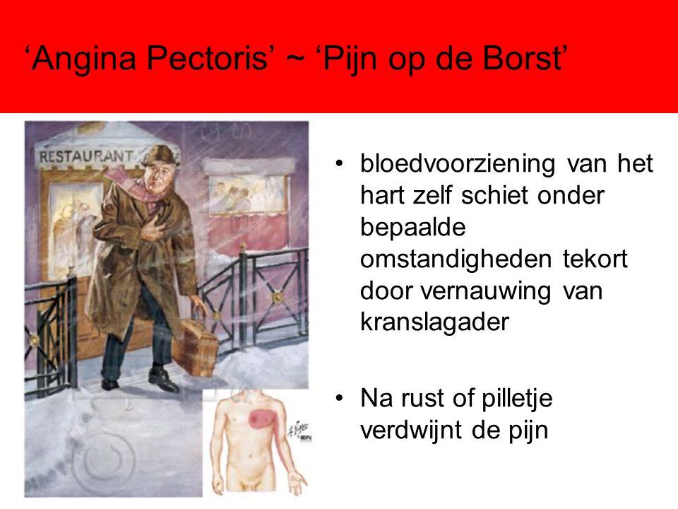 'Angina Pectoris' ~ 'Pijn op de Borst'