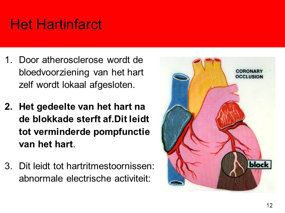 Het Hartinfarct Door atherosclerose wordt de bloedvoorziening van het hart zelf wordt lokaal afgesloten.