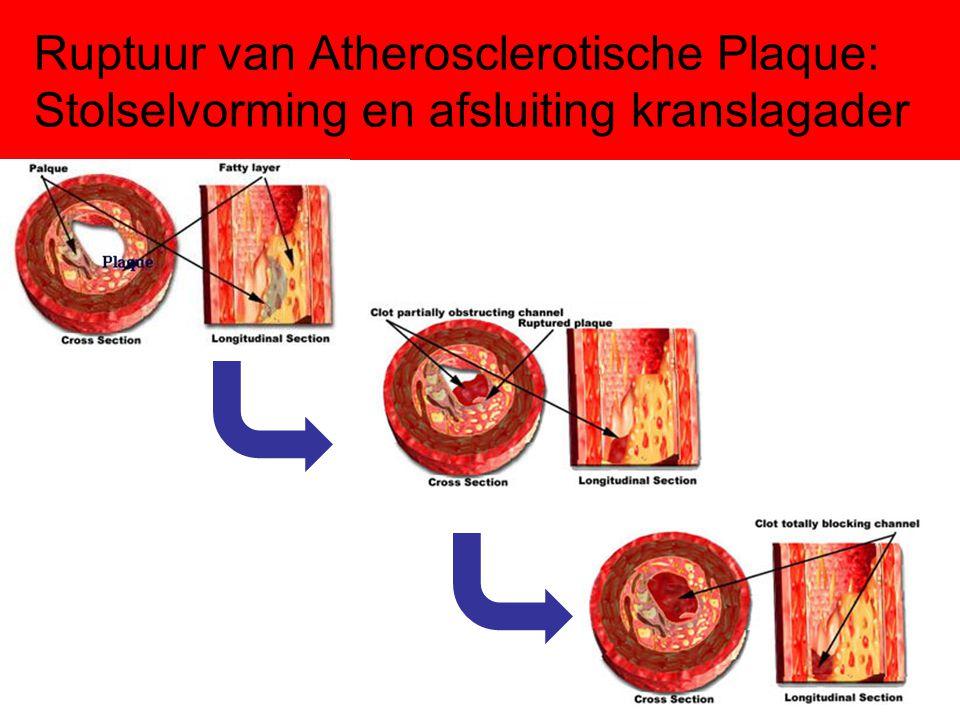 Ruptuur van Atherosclerotische Plaque: Stolselvorming en afsluiting kranslagader