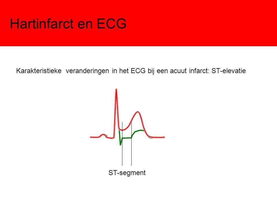Hartinfarct en ECG Karakteristieke veranderingen in het ECG bij een acuut infarct: ST-elevatie.