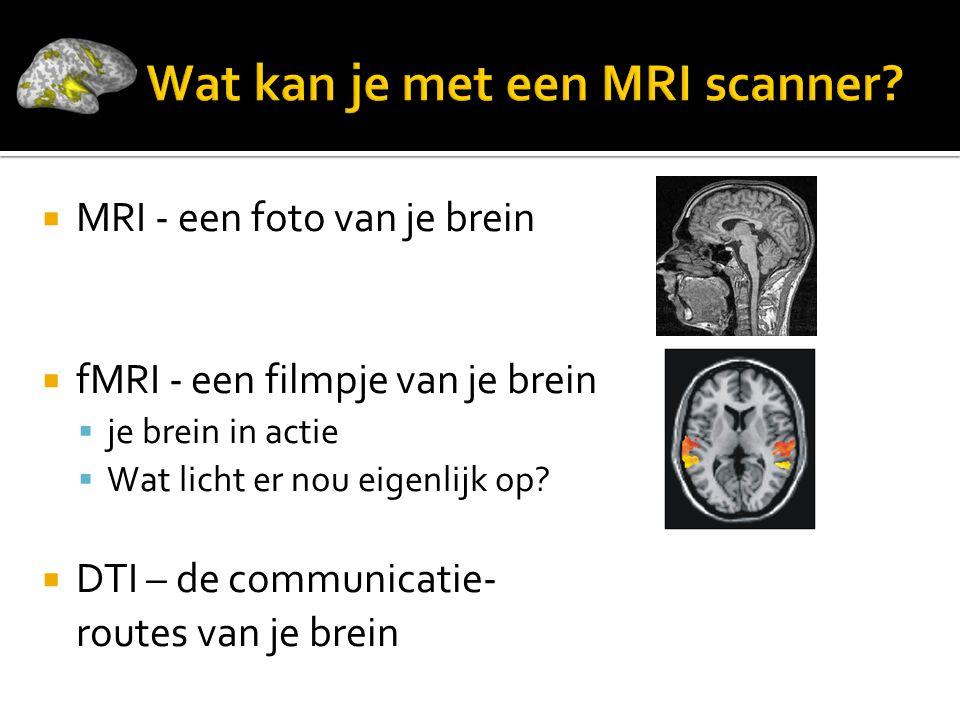 Wat kan je met een MRI scanner