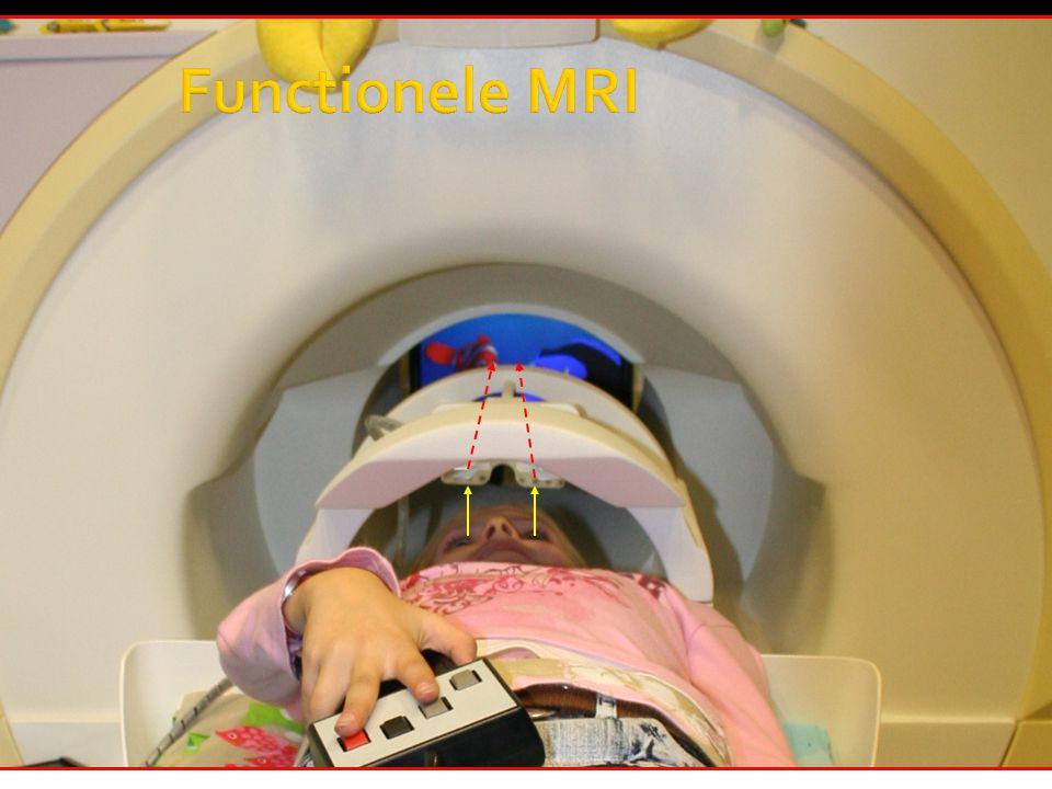 Functionele MRI fMRI: proefpersoon voert taak uit