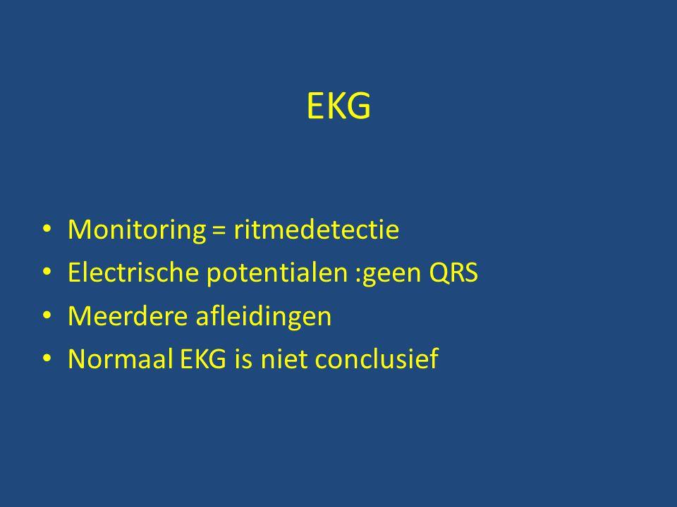 EKG Monitoring = ritmedetectie Electrische potentialen :geen QRS