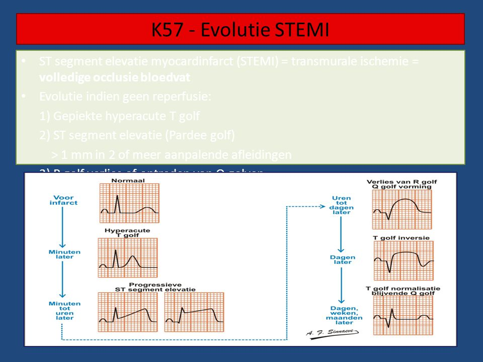 K57 - Evolutie STEMI ST segment elevatie myocardinfarct (STEMI) = transmurale ischemie = volledige occlusie bloedvat.