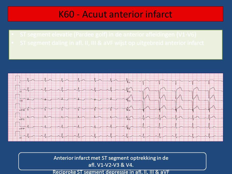 K60 - Acuut anterior infarct