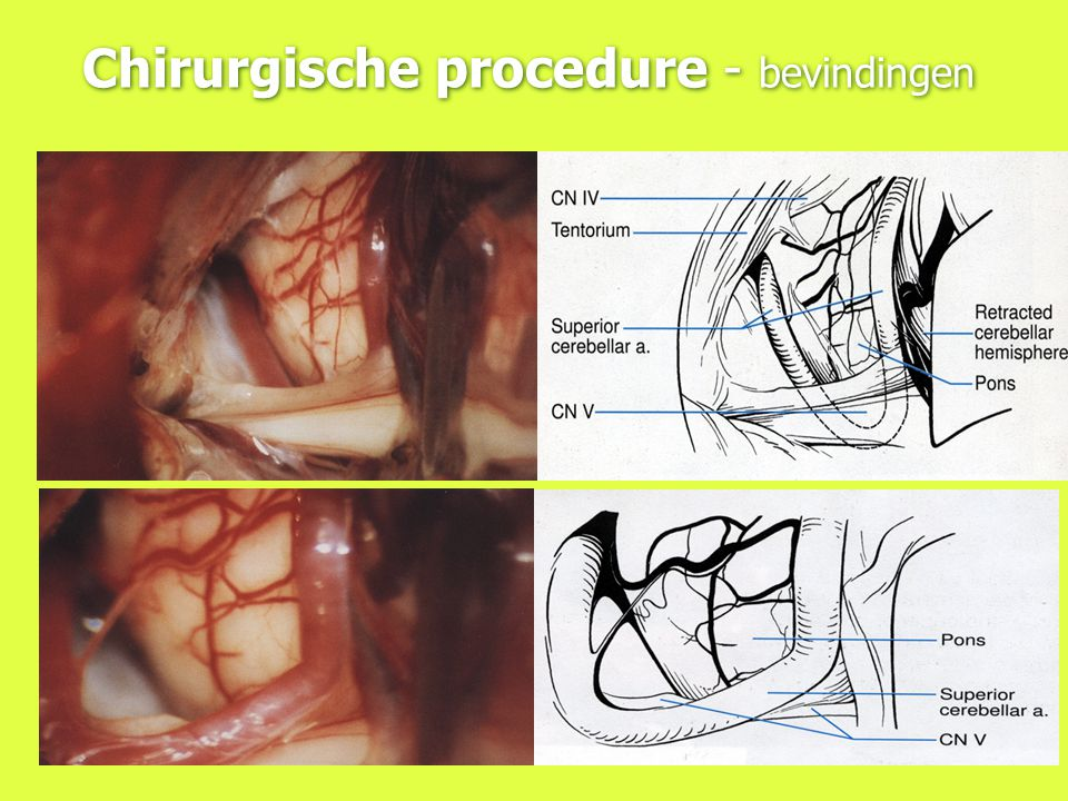 Chirurgische procedure - bevindingen