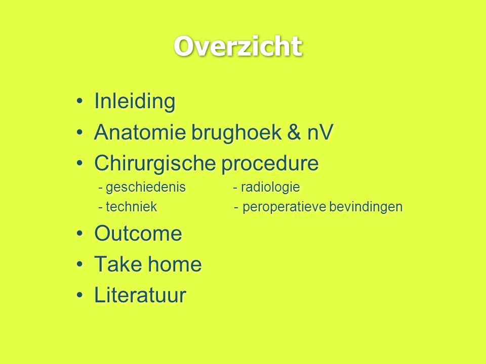 Overzicht Inleiding Anatomie brughoek & nV Chirurgische procedure