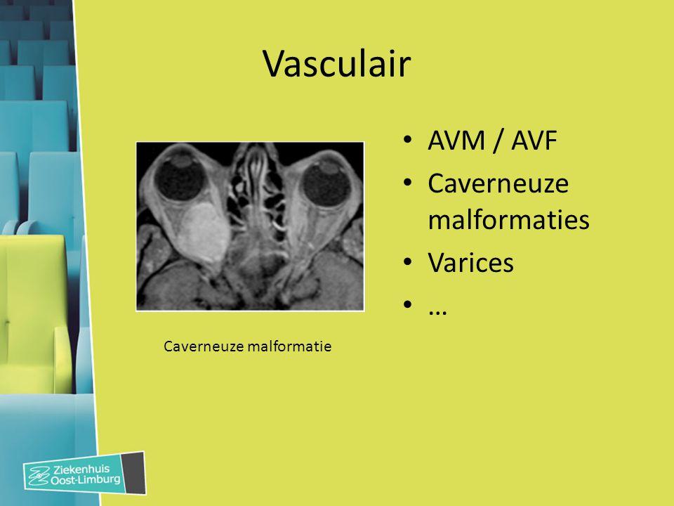 Vasculair AVM / AVF Caverneuze malformaties Varices …