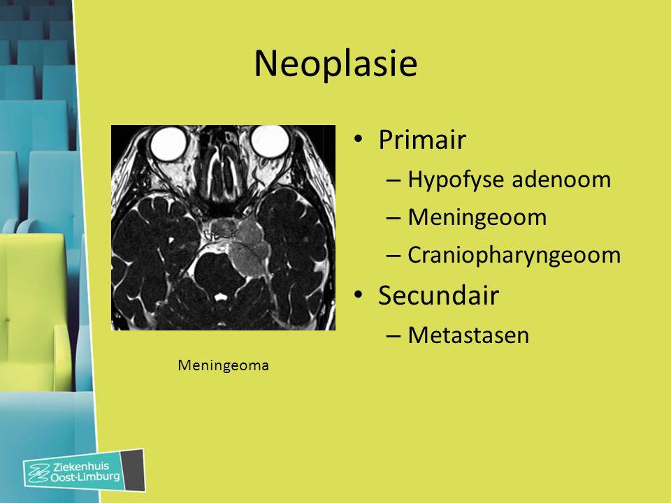 Neoplasie Primair Secundair Hypofyse adenoom Meningeoom