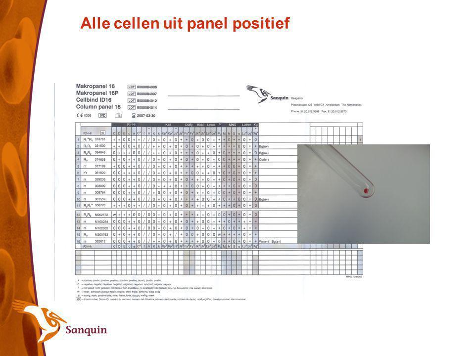 Alle cellen uit panel positief