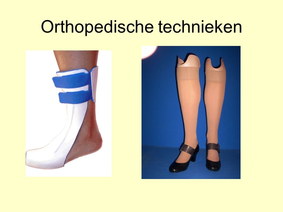 Orthopedische technieken