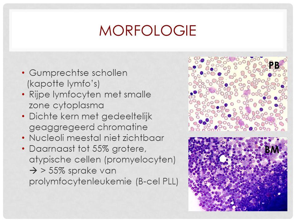 Morfologie PB BM Gumprechtse schollen (kapotte lymfo's)