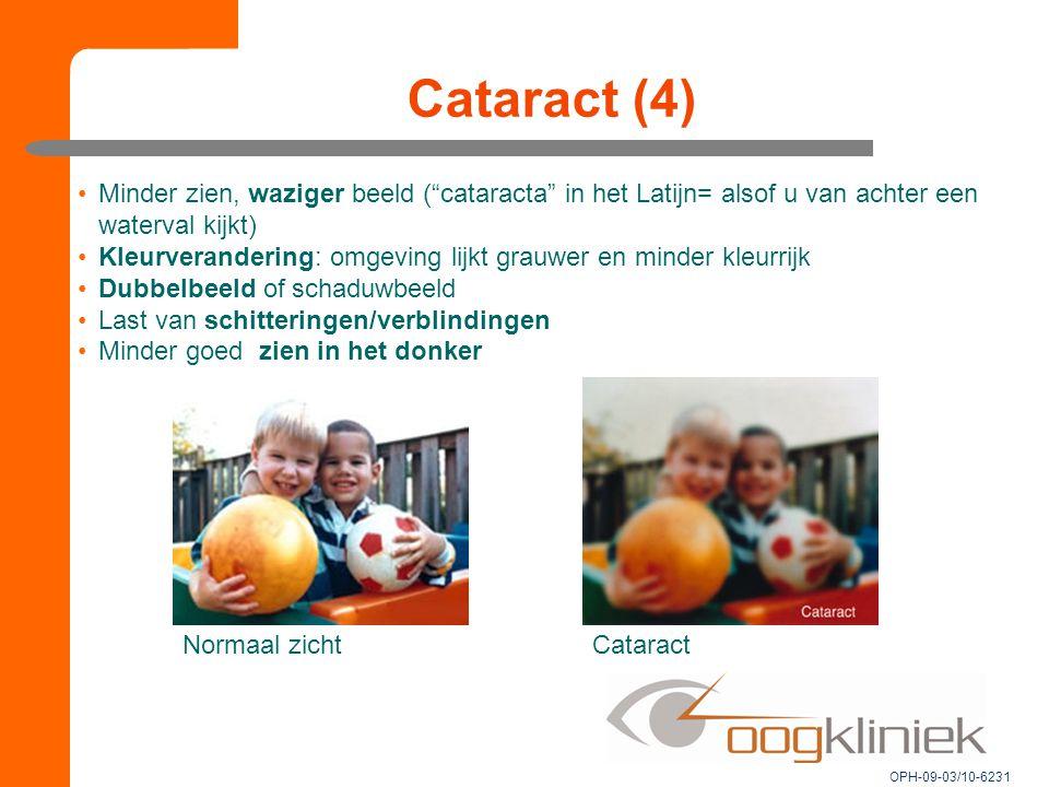 Cataract (4) Minder zien, waziger beeld ( cataracta in het Latijn= alsof u van achter een waterval kijkt)