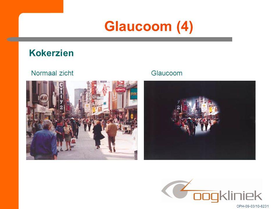Glaucoom (4) Kokerzien Normaal zicht Glaucoom OPH-09-03/10-6231