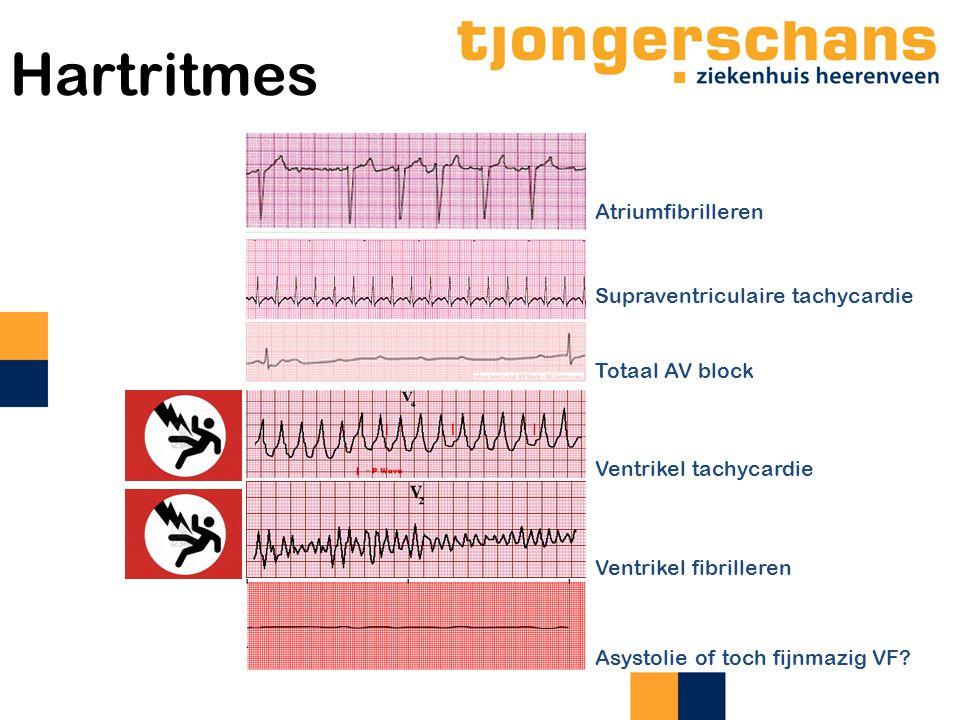Hartritmes Atriumfibrilleren Supraventriculaire tachycardie
