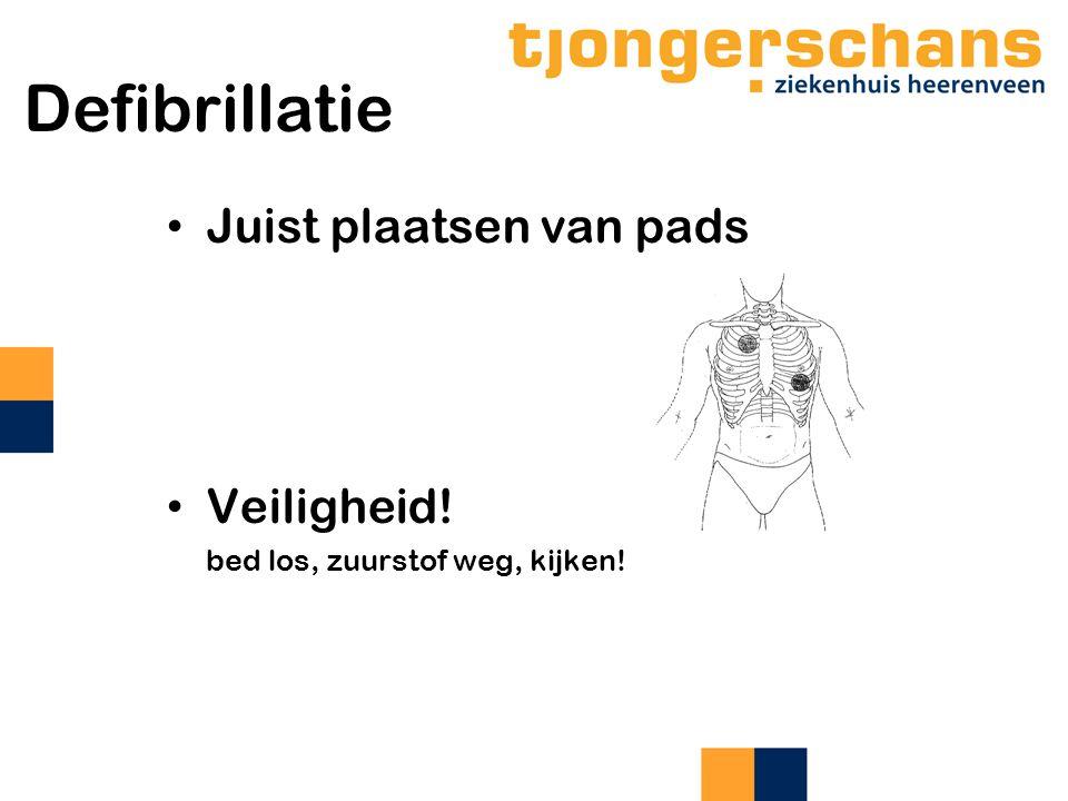 Defibrillatie Juist plaatsen van pads Veiligheid!
