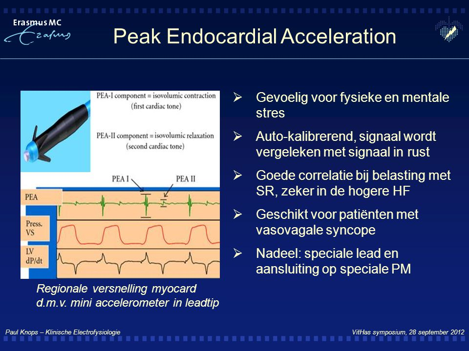 Peak Endocardial Acceleration