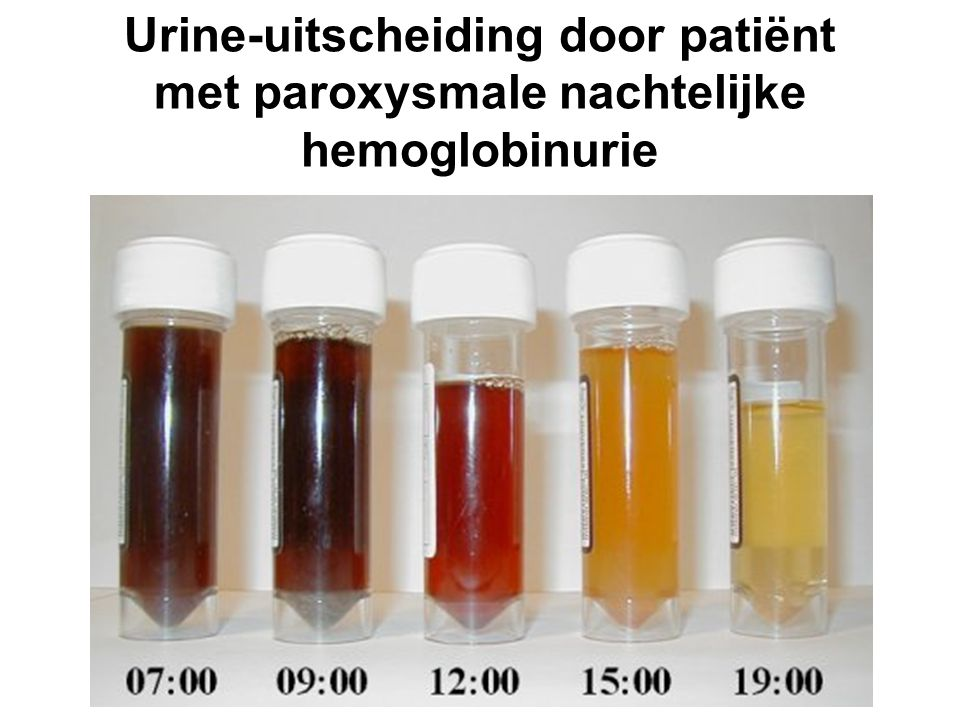 Urine-uitscheiding door patiënt met paroxysmale nachtelijke hemoglobinurie