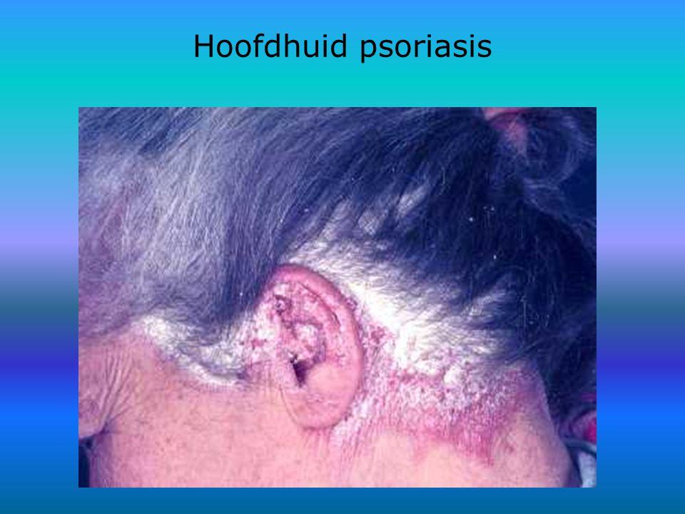 Hoofdhuid psoriasis