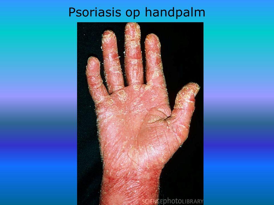 Psoriasis op handpalm