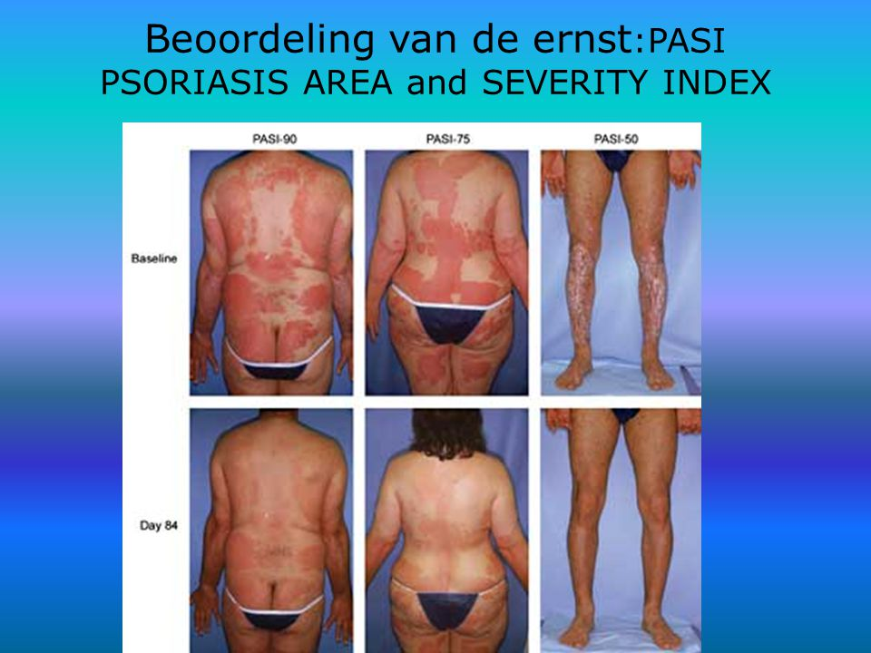 Beoordeling van de ernst:PASI PSORIASIS AREA and SEVERITY INDEX