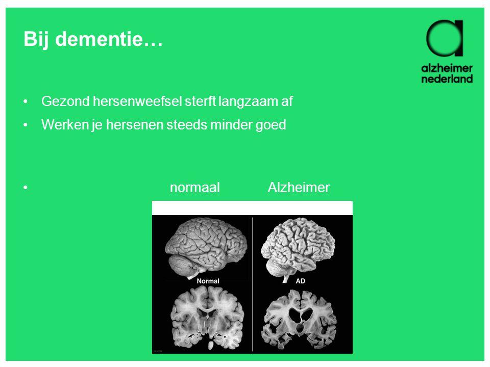 Bij dementie… Gezond hersenweefsel sterft langzaam af