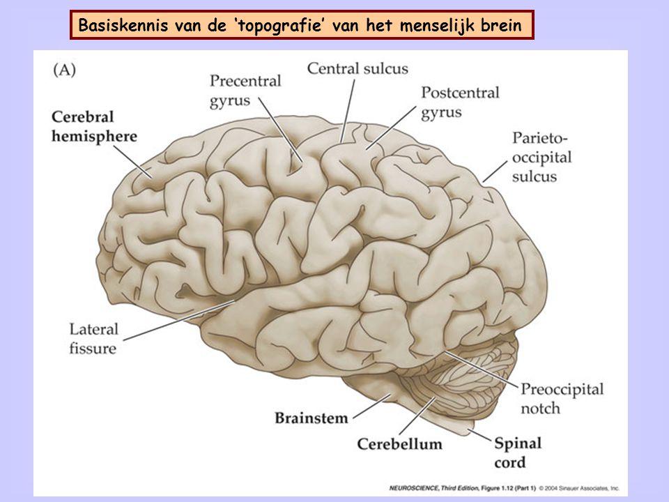 het menselijk brein: verschillende regio's