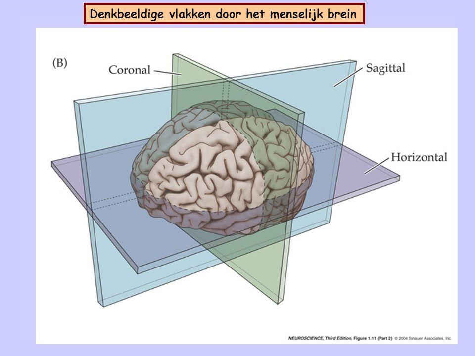 Dwarsdoorsnede (mid-sagittale sectie) van het menselijk brein