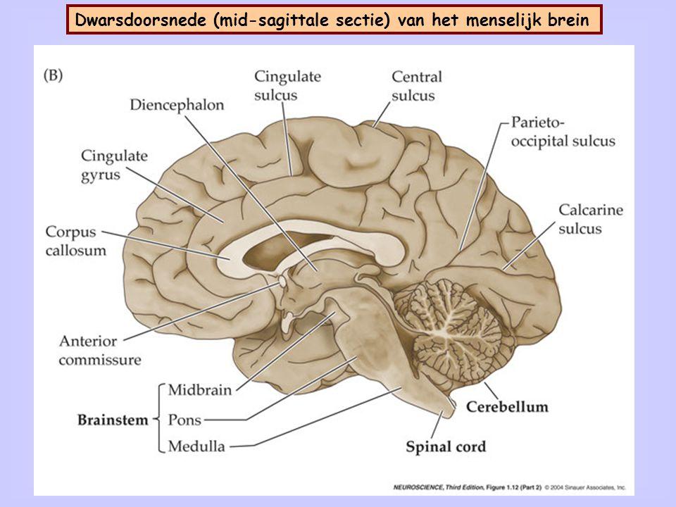 Dwarsdoorsnede (coronale sectie) van het menselijk brein