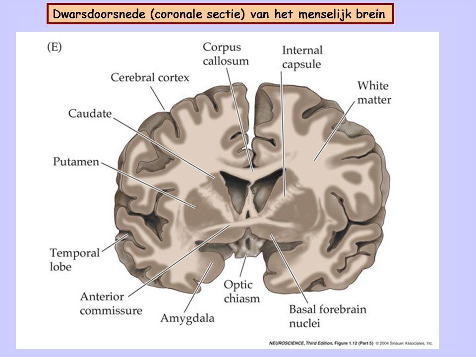 Dwarsdoorsnede (andere coronale sectie) van het menselijk brein
