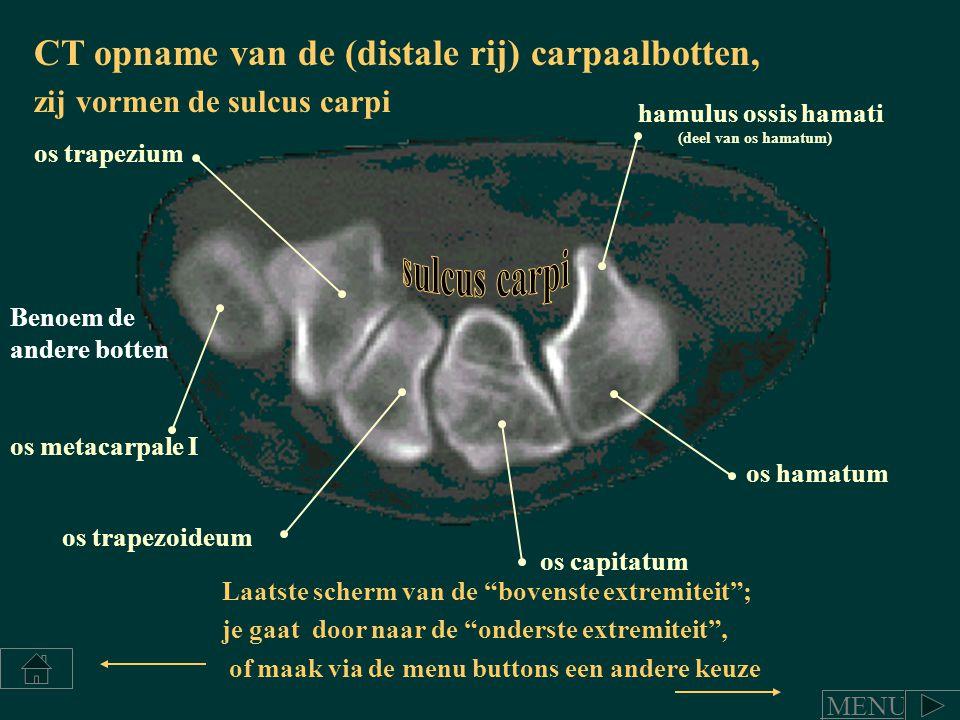 sulcus carpi CT opname van de (distale rij) carpaalbotten,