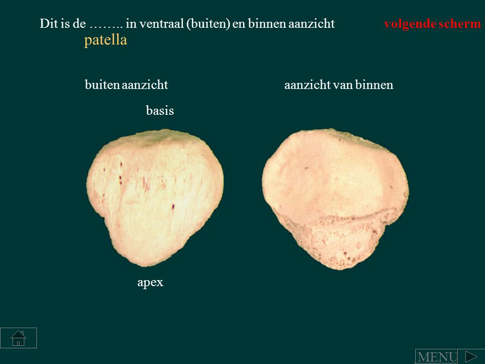 patella Dit is de …….. in ventraal (buiten) en binnen aanzicht