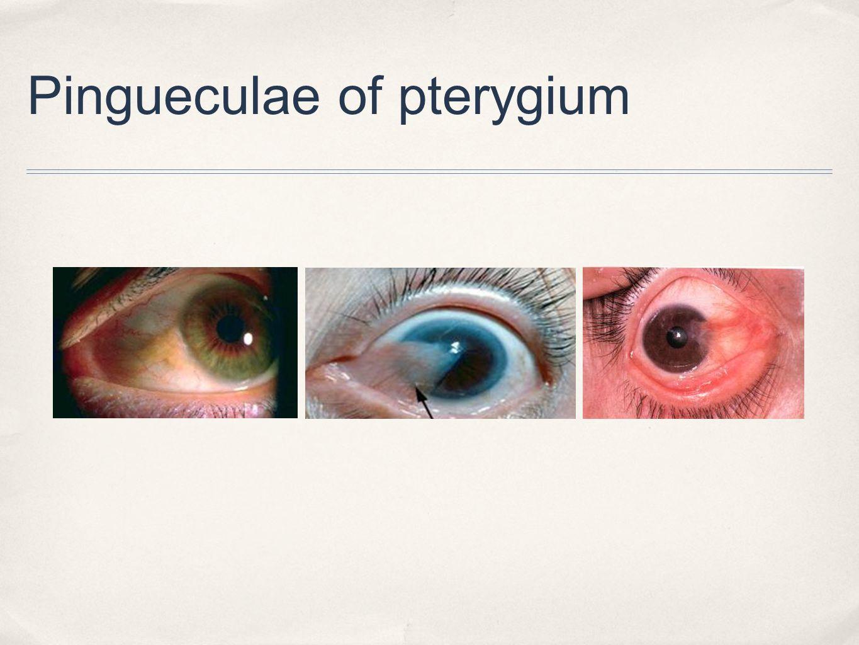 Pingueculae of pterygium
