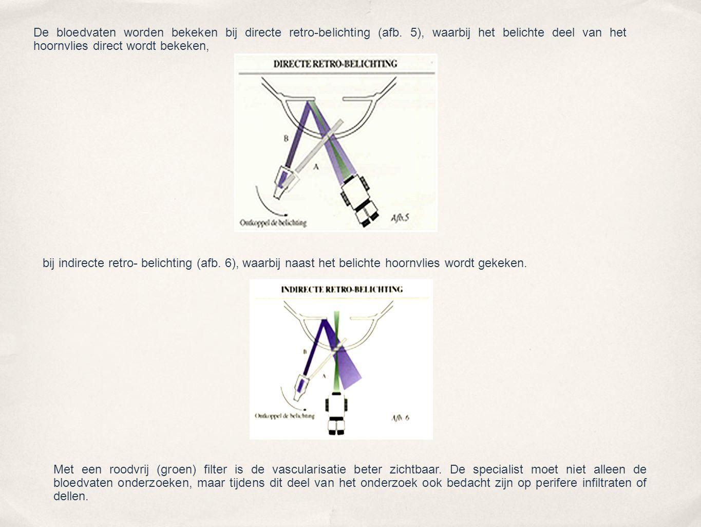 De bloedvaten worden bekeken bij directe retro-belichting (afb