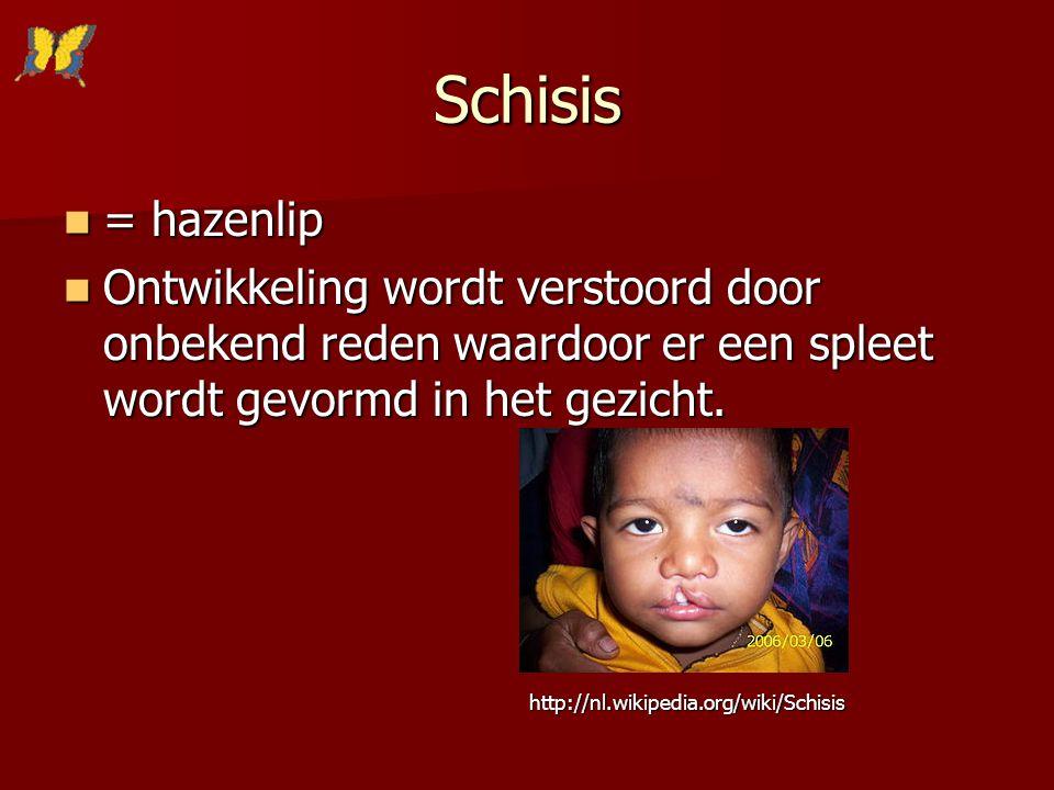 Schisis = hazenlip. Ontwikkeling wordt verstoord door onbekend reden waardoor er een spleet wordt gevormd in het gezicht.