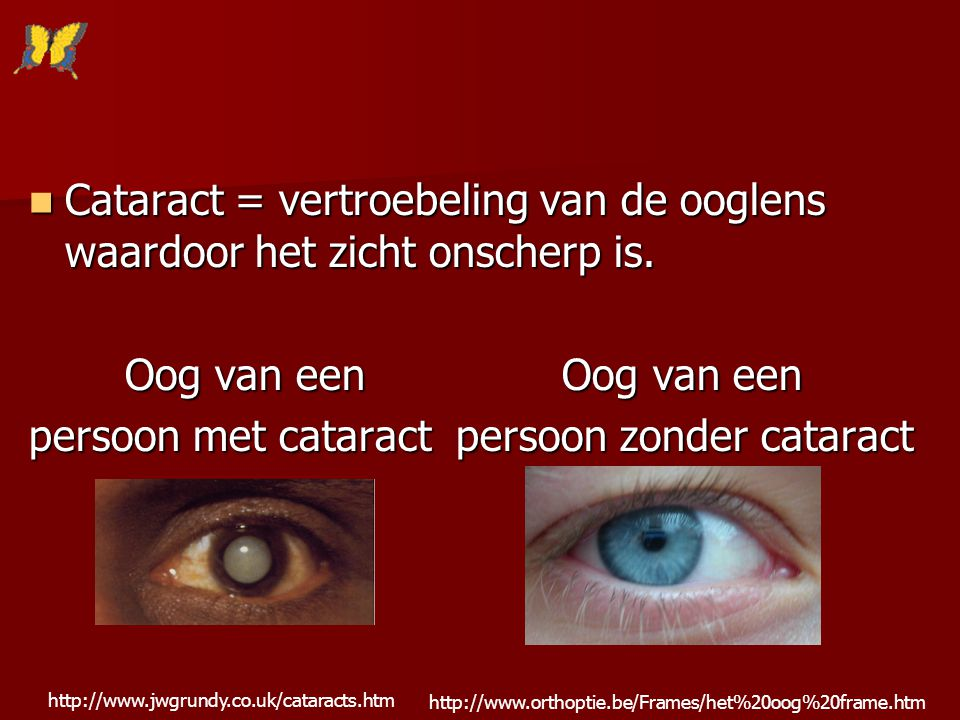 persoon met cataract persoon zonder cataract