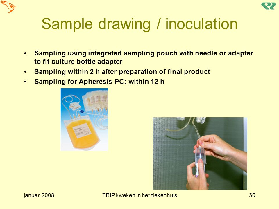 Sample drawing / inoculation