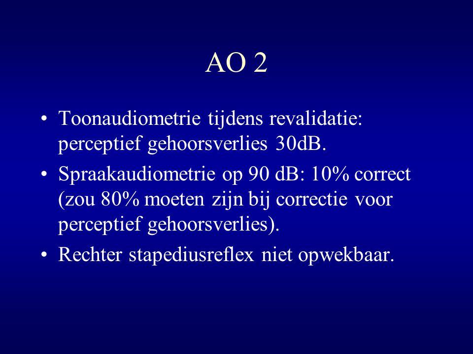 AO 2 Toonaudiometrie tijdens revalidatie: perceptief gehoorsverlies 30dB.