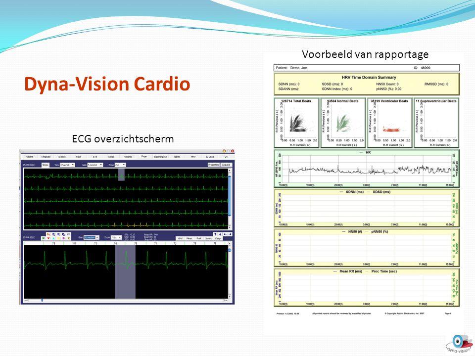 Dyna-Vision Cardio Voorbeeld van rapportage ECG overzichtscherm